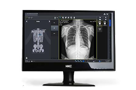 Vieworks Acquisition Software for VIVIX panel solutions